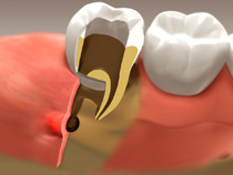 root_canal_02