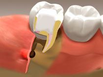 root_canal_04