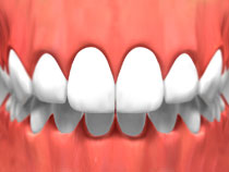 teeth_whitening_02